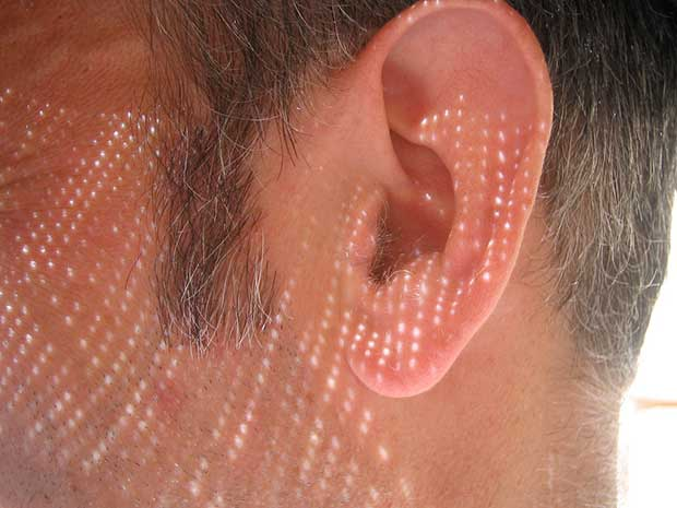 Future of hearing loss